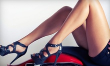 Two, Four, or Six Laser Vein-Removal Treatments for Both Full Legs at NV Medical Spa (Up to 93% Off)