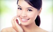 One or Three Laser Photo-Rejuvenation Treatments at The Texas Vein Center (Up to 87% Off)