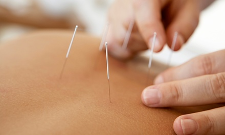 $39 for a One-Hour Life-Changing Acupuncture Experience Package at Zen Shiatsu ($85 Value)
