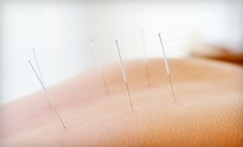 One, Three, or Six Acupuncture Sessions at Precision Point Wellness (Up to 68% Off)