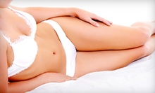 Laser Hair Removal for a Small, Medium, or Large Area, or Year of Unlimited Sessions at Body & Soul Spa (Up to 77% Off)