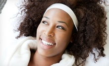 Two, Four, Six, or Eight Microdermabrasion Treatments at Haven Skin Studio (Up to 69% Off)