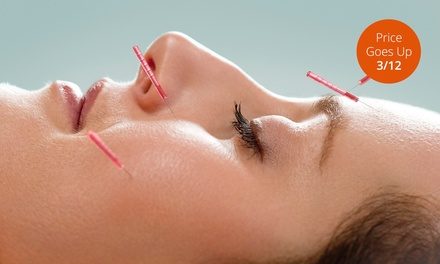 One or Three Acupuncture Sessions at Quality Natural Therapy (Up to 67% Off)