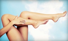 $169 for Three 30-Minute Sclerotherapy Treatments and a Vein Consultation at Artemis ($1,100 Value)