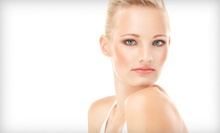 $89 for a Microlaser Peel at EuroSpa Médica ($500 Value)