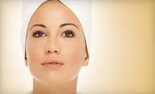 One or Three Microdermabrasion or Chemabrasion Treatments at McGrath Cosmetic (Up to 67% Off)