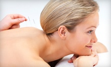 Acupuncture or Acupuncture Facelift Package at Pinnacle Acupuncture & Chinese Herbal Medicine (Up to 90% Off)