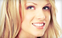 $129 for an LED Teeth-Whitening Package with Exam, Fluoride Treatment, Take-Home Kit at Hollywood Smile ($574 Value)
