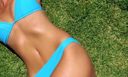 Six Laser Hair-Removal Treatments at Shape Medical Wellness Center (Up to 90% Off). Five Options Available.