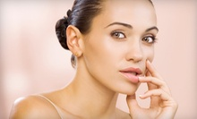 One, Three, or Six Microdermabrasions with Echo2 Oxygen Add-ons at Adryan Aesthetics (Up to 66% Off)