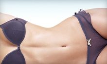 Two, Four, or Six Laser Lipolysis Treatments at Living Life Medspa (Up to 72% Off)