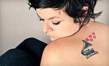 Tattoo Removal at Softouch Permanent Makeup &amp; Laser Technologies in Kenner (Up to 85% Off). Three Options Available.