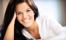 $109 for Zoom! Teeth Whitening, Dental Exam, and Tooth Polishing at Orange Family Dentistry ($399 Value)