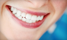 Dental Cleaning Packages at Michael Shambaugh DDS (Up to 63% Off). Two Options Available.