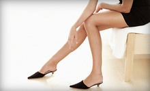 $189 for Three Sclerotherapy Treatments for Spider or Varicose Veins at Artemis Revolution ($1,100 Value)