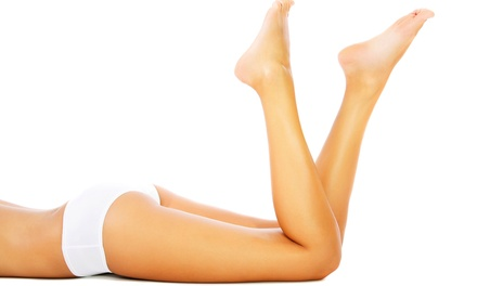 $119 for Spider-Vein Treatment for One Leg at Advanced Vein Treatment & Cosmetic Center ($675 Value)