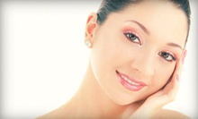 Microdermabrasion with Add-Ons at Angela's European Skin Care (Up to 61% Off). Three Options Available.