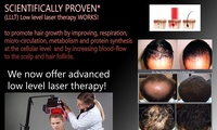 GROUPON: Up to 94% Off Laser Hair Restoration Treatment Ester's Hair Salon