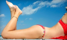 $175 for Three Laser Hair-Removal Treatments at Serenity MedSpa (Up to $600 Value)