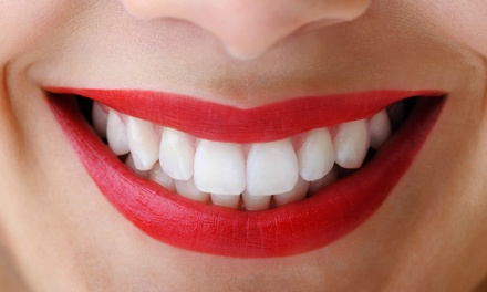 $123 for a Zoom! Teeth-Whitening Treatment from Dr. Pyle with Orlando Dental Group (a $500 Value)