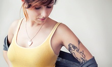 One Non-Laser Tattoo-Removal Session at The Needlery (Up to 59% Off)
