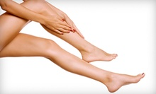 Two or Four Spider-Vein-Removal Treatments on a 4-Square-Inch Area at The Hollywood Body Laser Center (82% Off)