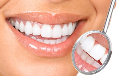 $60 for a Teeth-Whitening Treatment with Touchup at Total New Ideas ($620 Value)