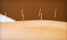 One, Three, or Six Acupuncture Sessions from Dr. Frank Frydrych at Complete Rehabilitation (Up to 63% Off)