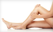 $99 for Two Spider-Vein-Removal Treatments at LAE Beauty ($300 Value)