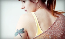 1, 3, 5, 7, or 10 Laser Tattoo-Removal Sessions at The Factory (Up to 74% Off)