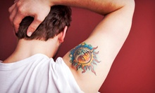 "Laser Tattoo Removal for an Area Up to 4""x4"", 6""x6"", 8""x8"", or 10""x10"" at Weiler Plastic Surgery (Up to 59% Off)"