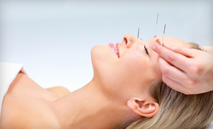 One or Three Acupuncture or Cosmetic Acupuncture Treatments from Dr. Marni Ross, ND at Alma Wellness (Up to 65% Off)
