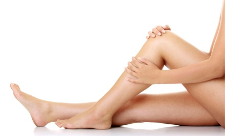 One or Two Sclerotherapy or Laser Spider-Vein Treatments at vivaMD (Up to 61% Off)