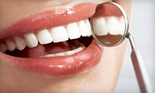Dental Exam, X-rays, and Cleaning with Optional Take-Home Whitening Kit at Concerned Dental Care (Up to 86% Off)