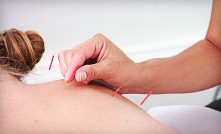 One or Three Acupuncture Treatments with Initial Consultation at Body and Soul Acupuncture (Up to 71% Off)