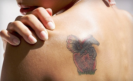 Three Laser Tattoo-Removal Sessions on a 5 Sq. In. or 10 Sq. In. Area at Tattoo Must Go (Up to 79% Off)