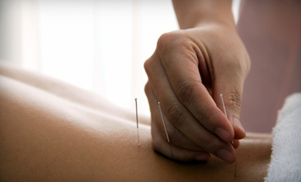 Initial Exam with One, Two, or Three Acupuncture Sessions at Synergy Chiropractic Spine &amp; Joint Center (Up to 65% Off)