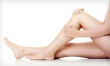 $129 for Two Sclerotherapy Spider-Vein Treatments at Boca Vein Treatment Center ($400 Value)