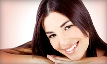 One, Three, or Five Microdermabrasions at Nalini's Salon & Day Spa (75% Off)