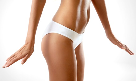 Three or Six Cellulite-Reduction Treatments at Advanced Laser Body Care Institute (Up to 92% Off)