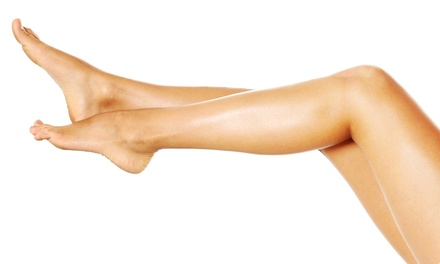 One or Two 20-Minute Sclerotherapy Treatments with Consultation at Total Vein Concepts (Up to 68% Off)