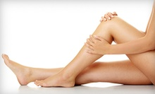 One 60-Minute Laser or Two 15-Minute Sclerotherapy Spider-Vein Treatments at Dr. Jay's Laser Medi Spa (Up to 79% Off)