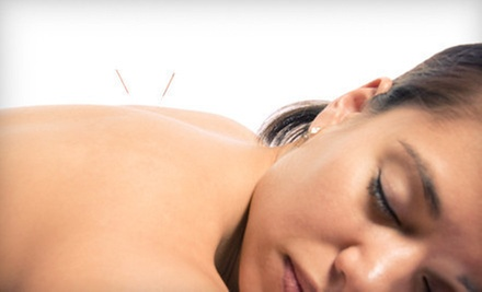 $29 for Acupuncture Treatment and Consultation at Balance Point Acupuncture and Traditional Chinese Medicine ($95 Value)