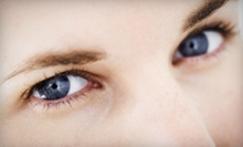 $1,499 for a Laser Upper-Eyelid Lift for Both Eyes at Walman Eye Center ($3,600 Value)