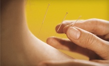 Consultation and One or Two Acupuncture Treatments from Patty Owen or Kristen LaSor (Up to 72% Off)