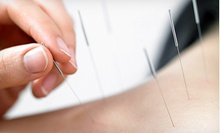 One or Three Acupuncture Treatments at Standley Lake Chiropractic (Up to 80% Off)