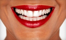 $39 for a 30-Minute Teeth-Whitening Session at Dazzling White ($159 Value)