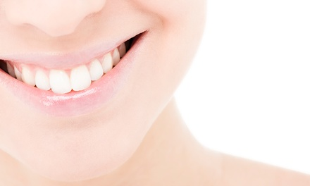$2,899 for a Full Invisalign Treatment with Teeth-Whitening Treatment at Infinite Dental Wellness ($7,200 Value)