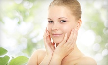 One Photofacial with Optional Peel at Le Bella Salon & Medspa (Up to 70% Off)
