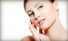 One or Three Chemical Peels at Aesthetics by Connie (Up to 55% Off)